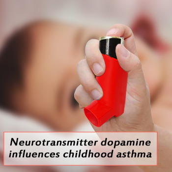 Neurotransmitter dopamine influences childhood asthma