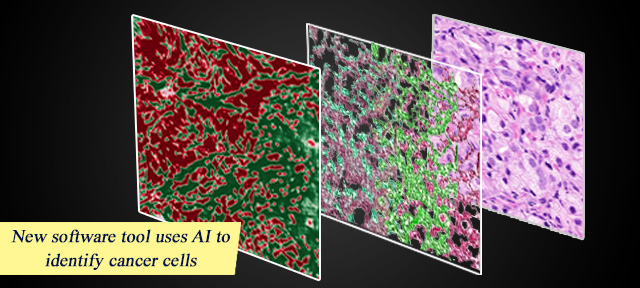 New software tool uses AI to identify cancer cells